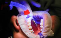 Dental Implants in Adelaide